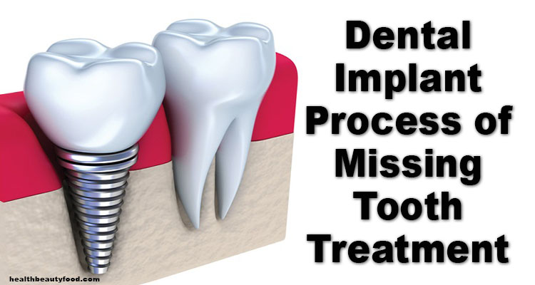 Dental Implant Process of Missing