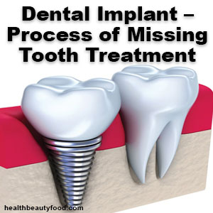 Dental Implant The Process of Missing Tooth Treatment